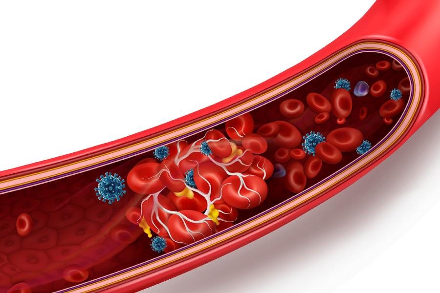 Covid-19 e sistema vascular